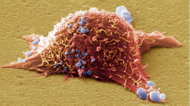 癌细胞的特点是长得快